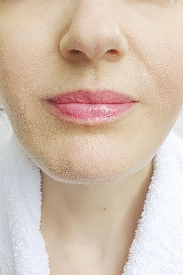 Radiofréquence, visage, sillons nasogéniens, avant après